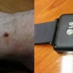 LGがG Watch向けに充電端子の腐食とやけどの改善のためのソフトウェアアップデートを配信。